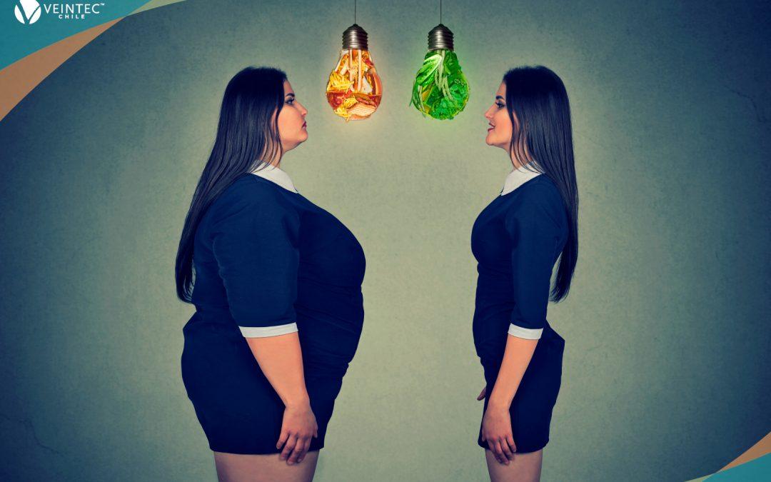 Obesidad, un factor de riesgo para las várices