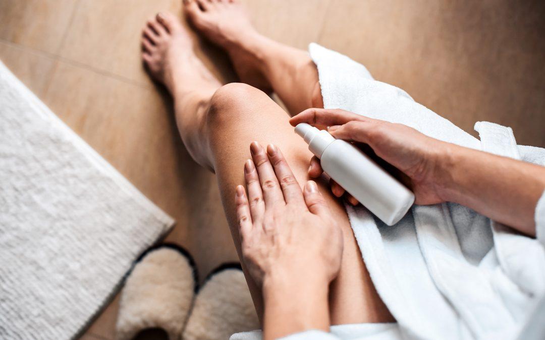 Métodos naturales para tratar y prevenir las várices